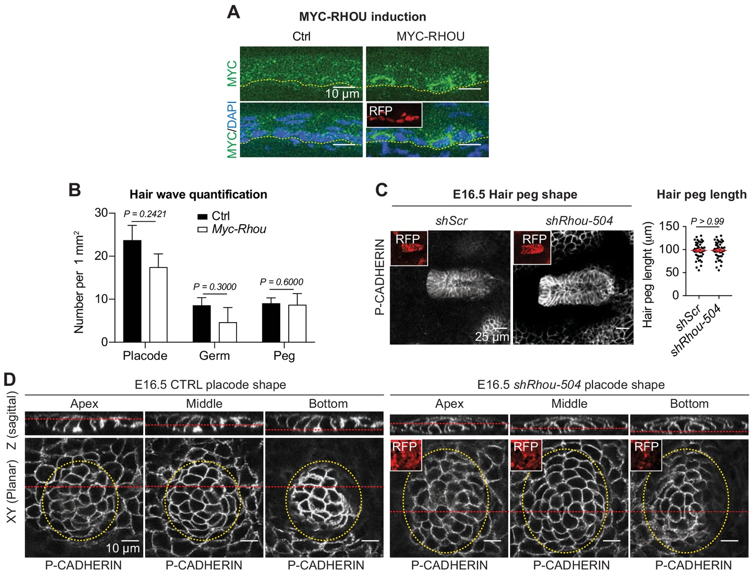 An Rnai Screen Unravels The Complexities Of Rho Gtpase Networks In Skin Morphogenesis Elife Girl, boy, hd, capes for them. an rnai screen unravels the